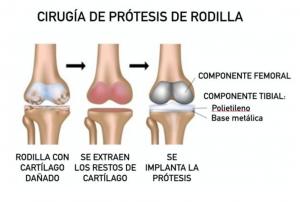 Prótesis De Rodilla Dr Bello