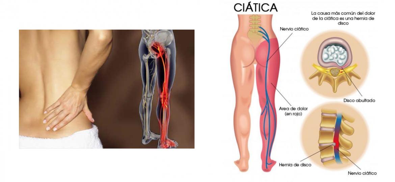 sintomas ciatica